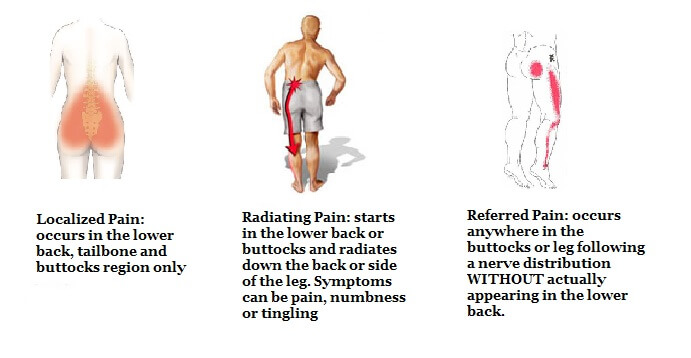 PHYSIOTHERAPY FOR BACK PAIN EPUB